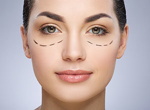 Management of Blepharoplasty Incisions