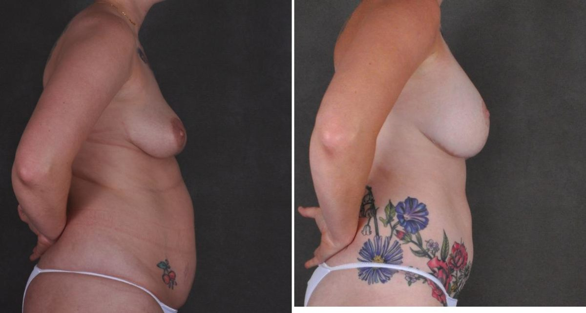 Breast Augmentation before and after photos in Omaha, NE, Case 10443