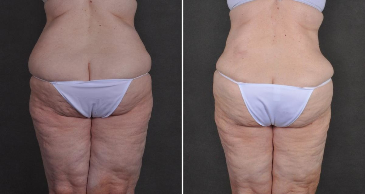 Liposuction before and after photos in Omaha, NE, Case 10480