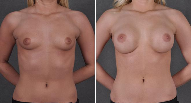 Breast Augmentation before and after photos in Omaha, NE, Case 3674