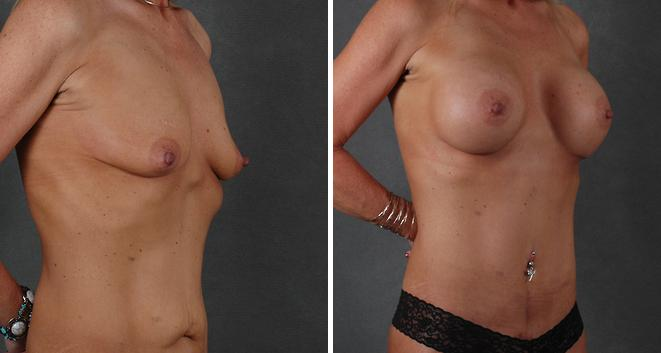 Breast Augmentation before and after photos in Omaha, NE, Case 3855