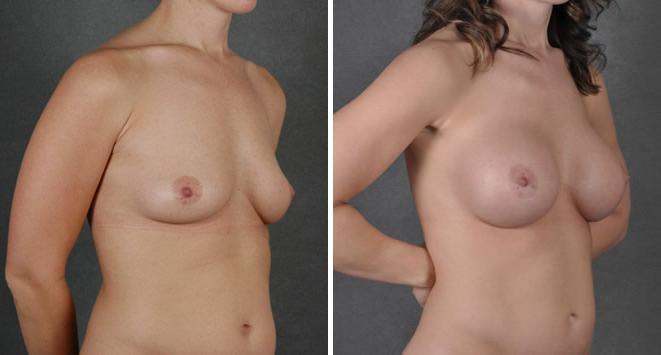 Liposuction before and after photos in Omaha, NE, Case 3770