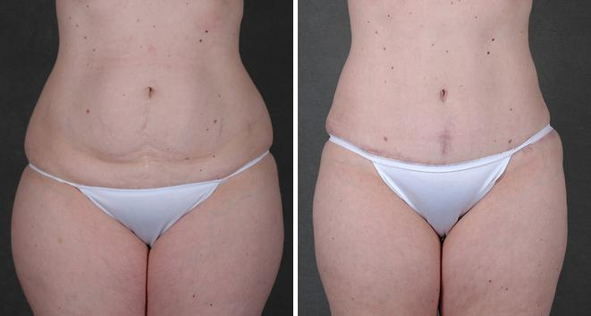 Liposuction before and after photos in Omaha, NE, Case 3826