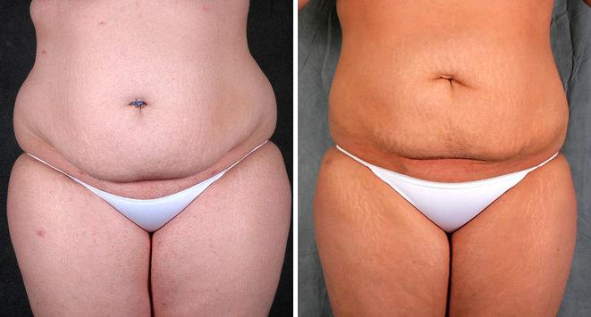 Liposuction before and after photos in Omaha, NE, Case 3917