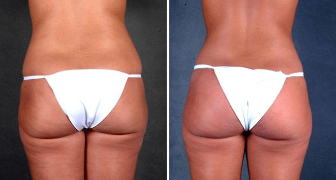 Liposuction before and after photos in Omaha, NE, Case 3940