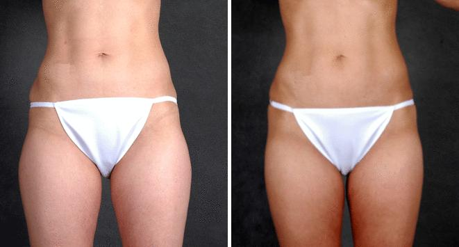 Liposuction before and after photos in Omaha, NE, Case 3962
