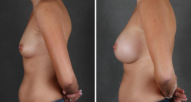 Breast Augmentation before and after photos in Omaha, NE, Case 3961