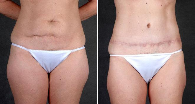 Liposuction before and after photos in Omaha, NE, Case 4078