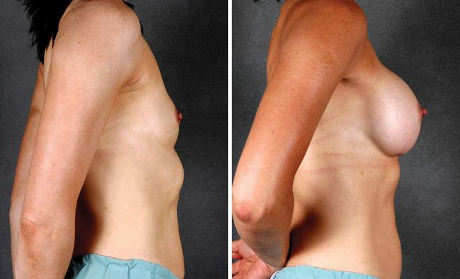 Breast Augmentation before and after photos in Omaha, NE, Case 4140