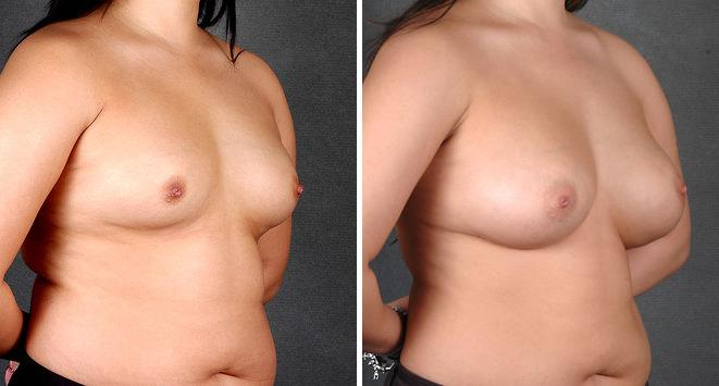 Breast Augmentation before and after photos in Omaha, NE, Case 4225