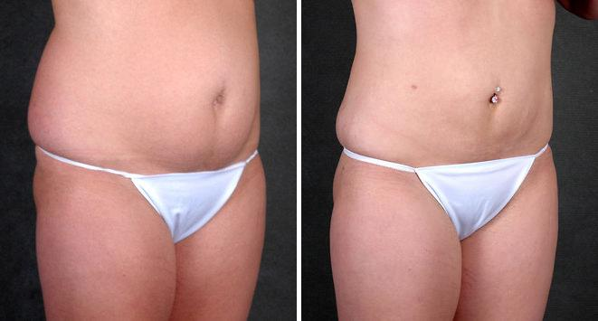Liposuction before and after photos in Omaha, NE, Case 4226