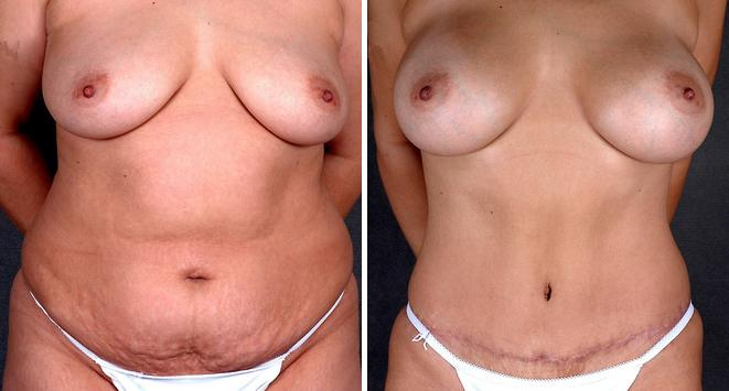 Liposuction before and after photos in Omaha, NE, Case 4270