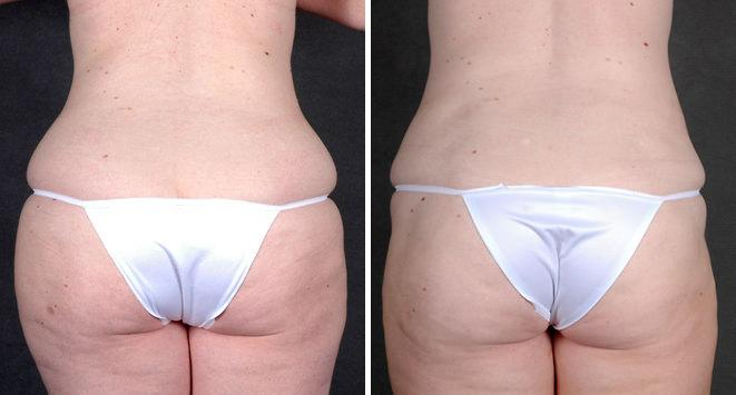 Liposuction before and after photos in Omaha, NE, Case 4287