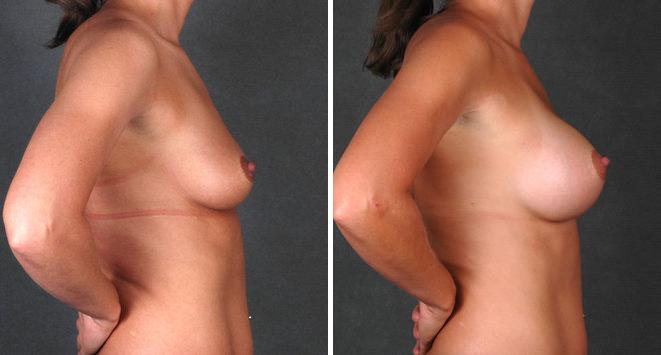 Breast Augmentation before and after photos in Omaha, NE, Case 4339
