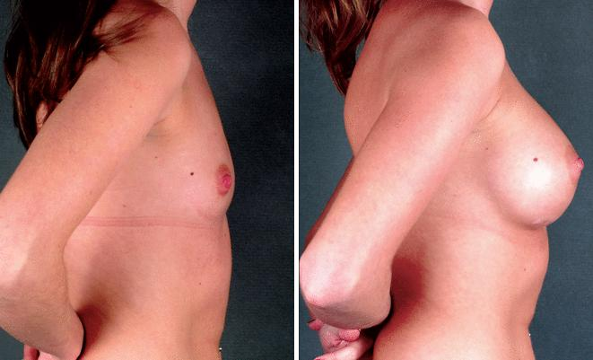 Breast Augmentation before and after photos in Omaha, NE, Case 4377