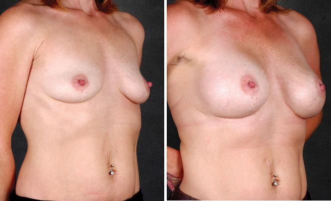 Breast Augmentation before and after photos in Omaha, NE, Case 4397