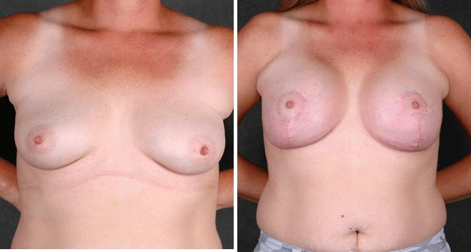 Breast Augmentation before and after photos in Omaha, NE, Case 4478