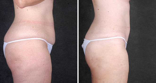 Mini Tummy Tuck before and after photos in Omaha, NE, Case 4362