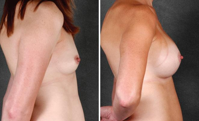 Mini Tummy Tuck before and after photos in Omaha, NE, Case 4319