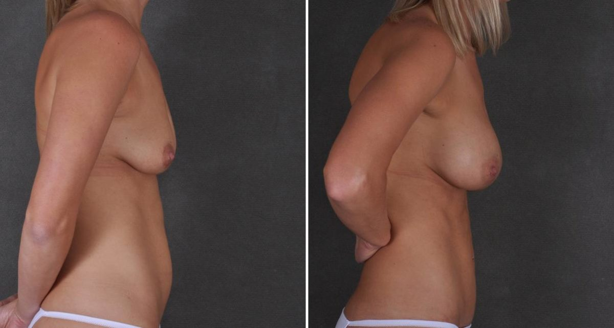 Mini Tummy Tuck before and after photos in Omaha, NE, Case 9355