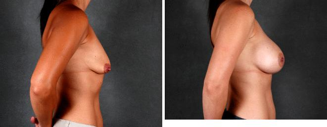 Breast Augmentation before and after photos in Omaha, NE, Case 4531