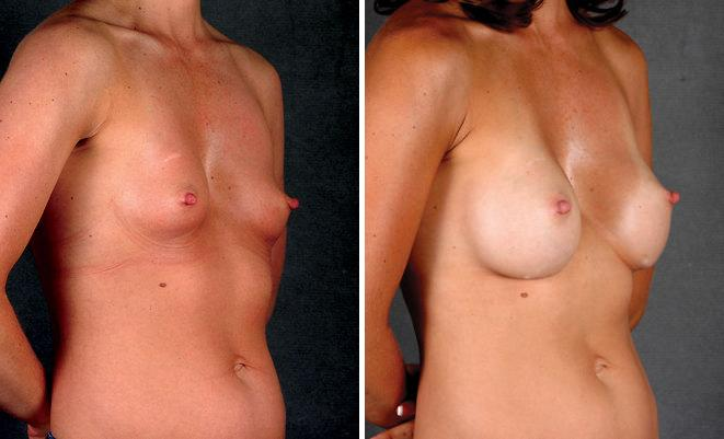 Breast Augmentation before and after photos in Omaha, NE, Case 4581