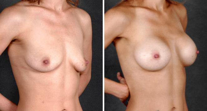 Breast Augmentation before and after photos in Omaha, NE, Case 4743