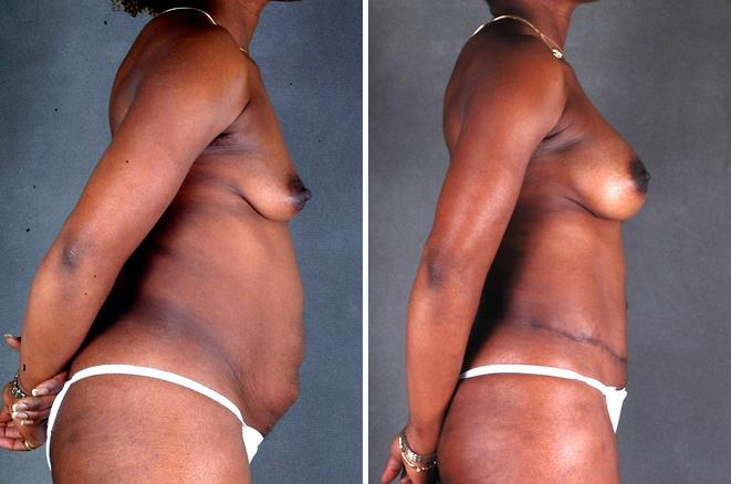 Breast Augmentation before and after photos in Omaha, NE, Case 4928