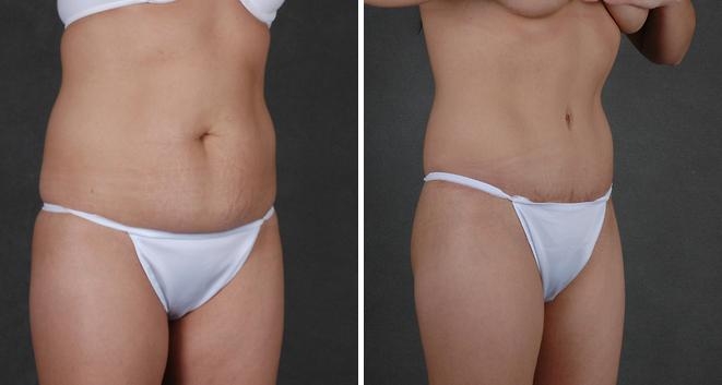 Tummy Tuck before and after photos in Omaha, NE, Case 4823
