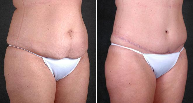 Tummy Tuck before and after photos in Omaha, NE, Case 4858