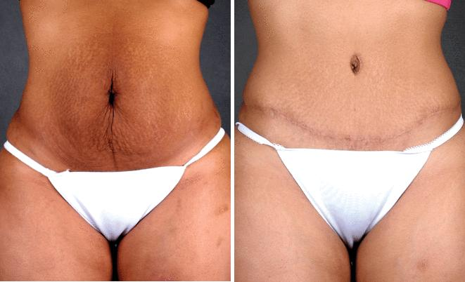 Tummy Tuck before and after photos in Omaha, NE, Case 4859