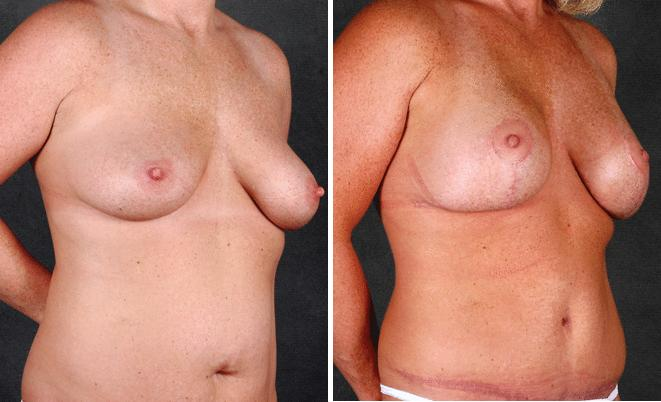 Breast Augmentation before and after photos in Omaha, NE, Case 4992