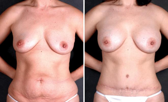 Breast Augmentation before and after photos in Omaha, NE, Case 5007