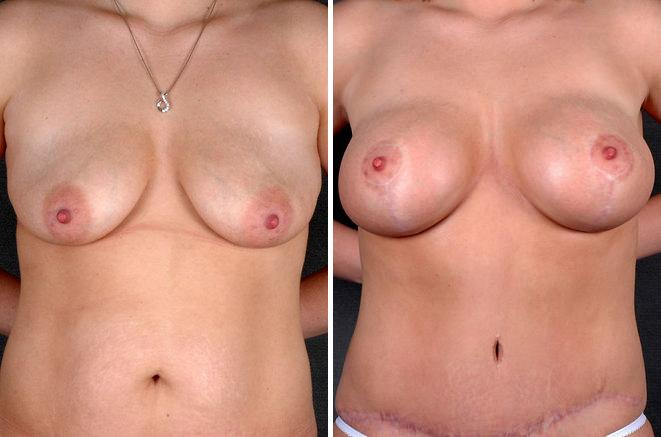 Breast Augmentation before and after photos in Omaha, NE, Case 5097