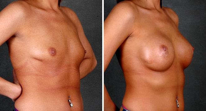 Breast Augmentation before and after photos in Omaha, NE, Case 5159