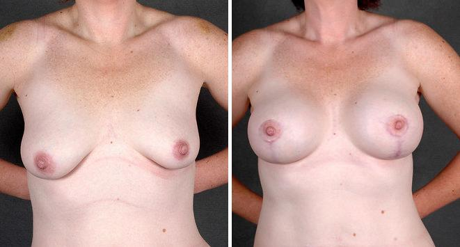 Breast Augmentation before and after photos in Omaha, NE, Case 5075