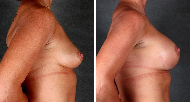 Breast Augmentation before and after photos in Omaha, NE, Case 5201