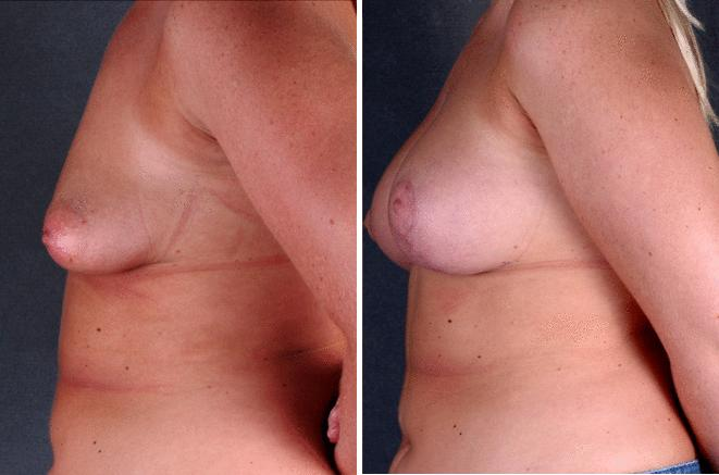 Breast Augmentation before and after photos in Omaha, NE, Case 5166