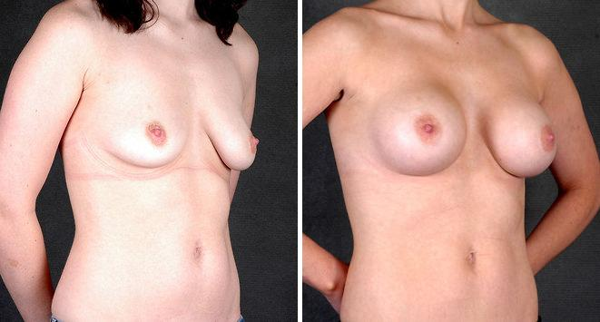 Breast Augmentation before and after photos in Omaha, NE, Case 5173