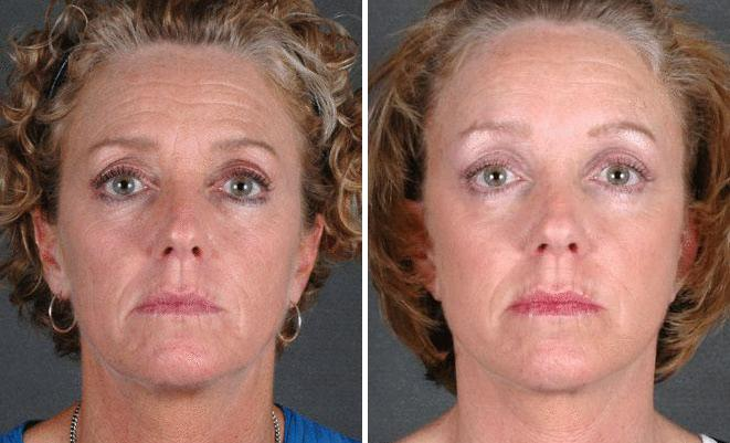 Blepharoplasty before and after photos in Omaha, NE, Case 5338