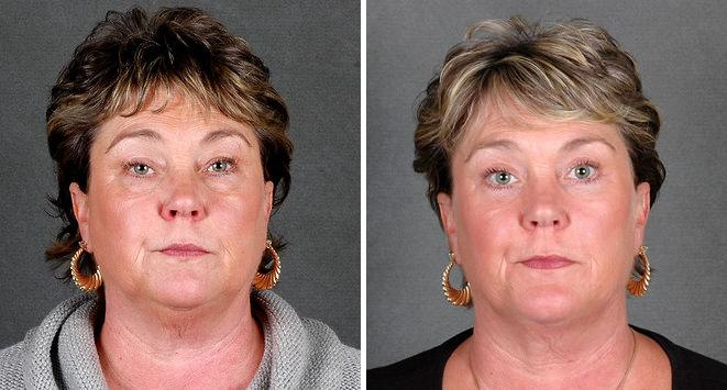 Blepharoplasty before and after photos in Omaha, NE, Case 5403