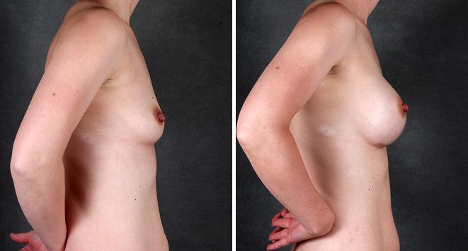 Breast Augmentation before and after photos in Omaha, NE, Case 5339