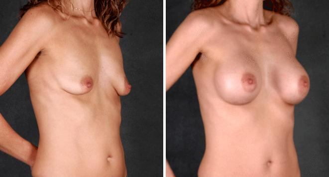 Breast Augmentation before and after photos in Omaha, NE, Case 5291