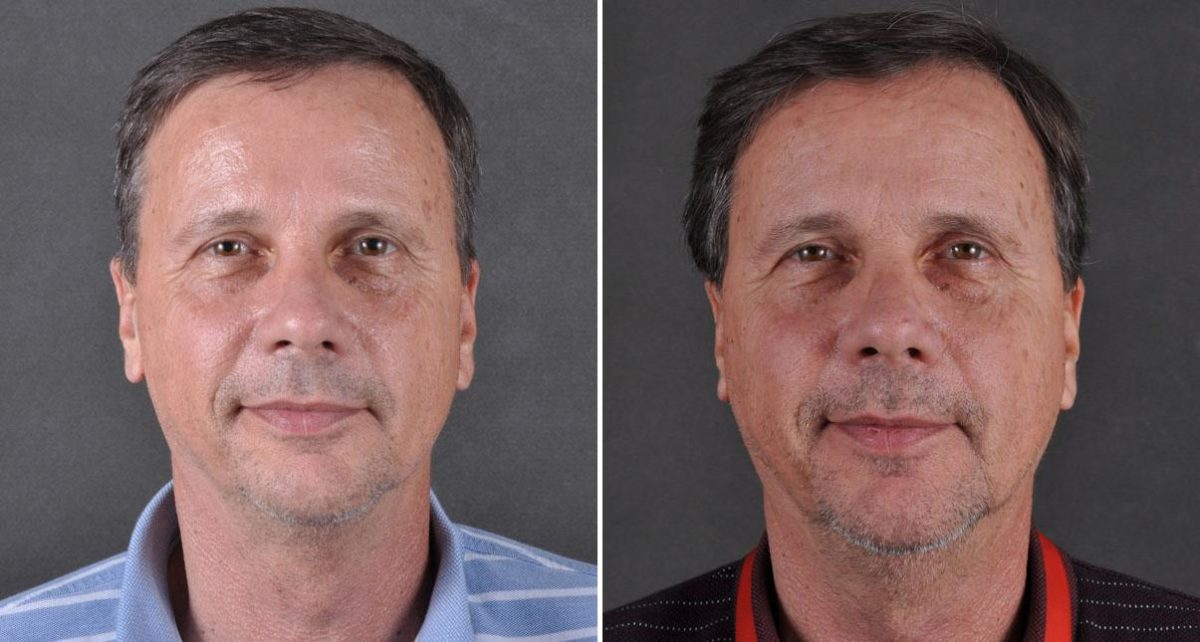 Blepharoplasty before and after photos in Omaha, NE, Case 8806