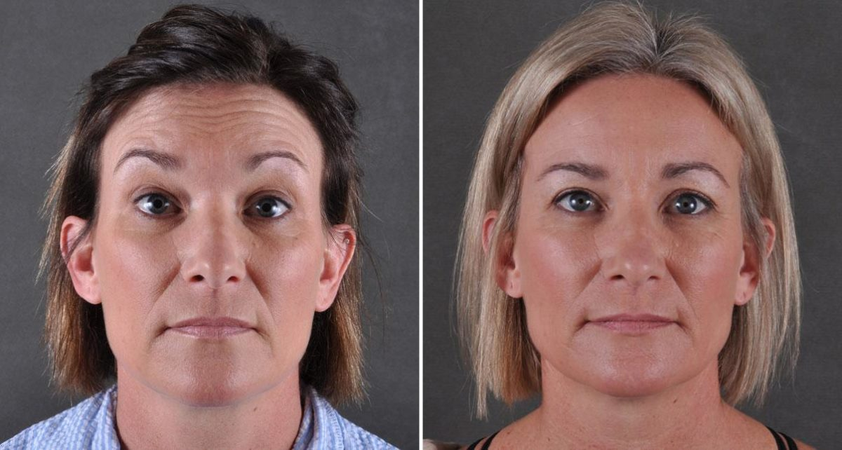 Blepharoplasty before and after photos in Omaha, NE, Case 8902