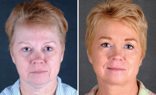 Blepharoplasty before and after photos in Omaha, NE, Case 5416