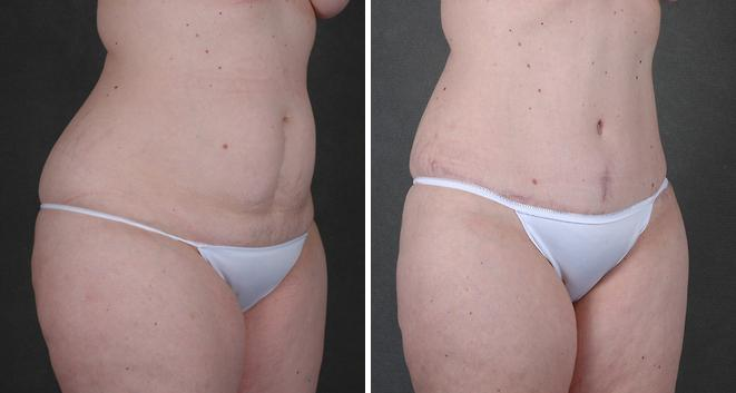 Breast Lift before and after photos in Omaha, NE, Case 5571