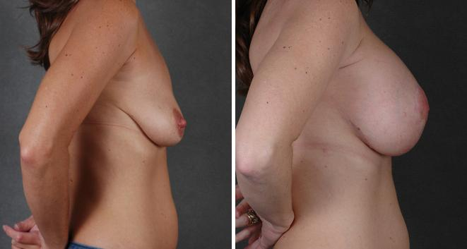 Breast Lift before and after photos in Omaha, NE, Case 5593