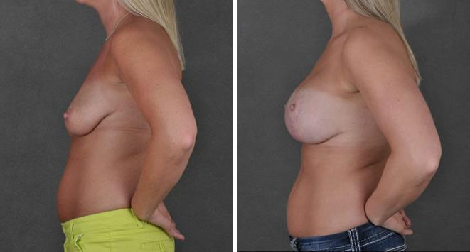 Breast Lift before and after photos in Omaha, NE, Case 5531