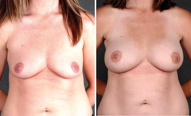 Breast Lift before and after photos in Omaha, NE, Case 5618